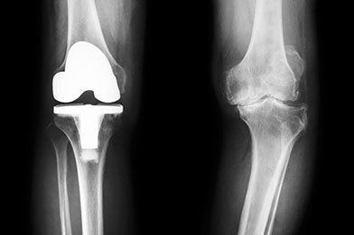 Arthritis & Joint Replacements