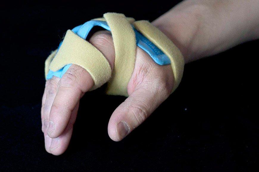 Specialist Hand & Wrist Clinic